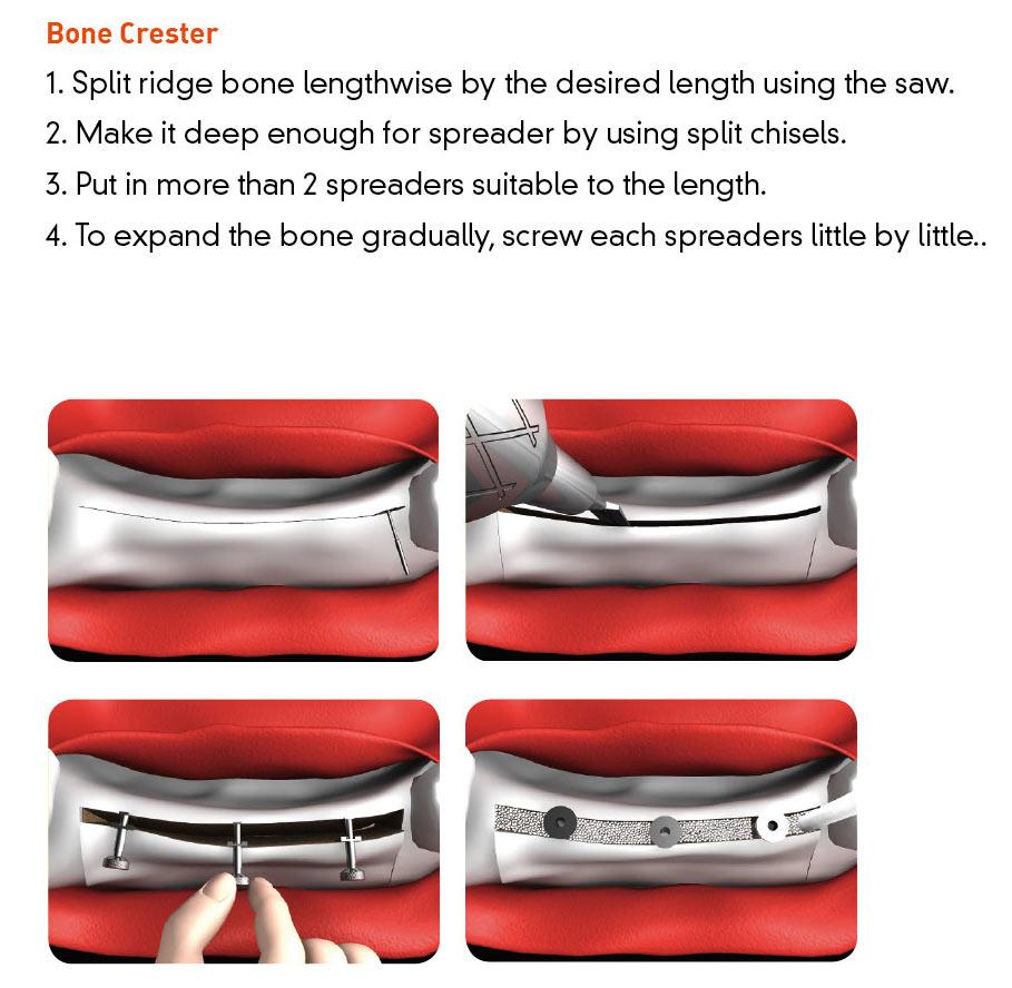 Split Master Bone Crester